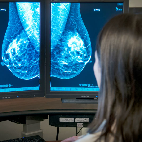 Hologic breast tomosynthesis training